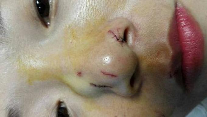 Une VIDEO d'un python réticulé mord le nez d'une femme chinoise à Phuket dans un spectacle de ser