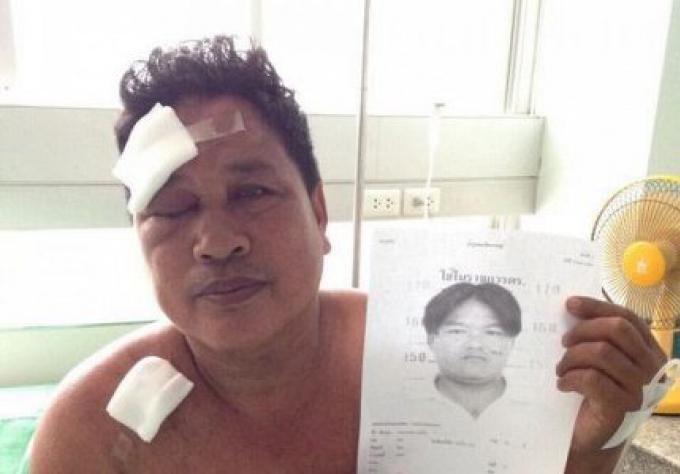 L'arrestation par la police du suspect de l'attaque au couteau à Kathu