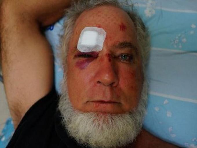 Les autorités et la police de Phuket devraient brancher des caméras pour finir avec la brutalité