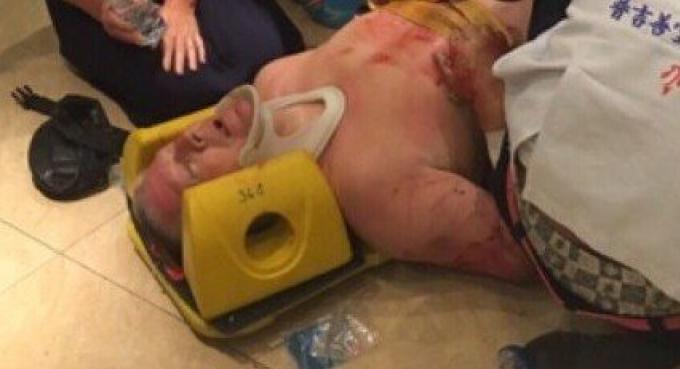 Un touriste australien blessé après être tombé d'un balcon de son hôtel