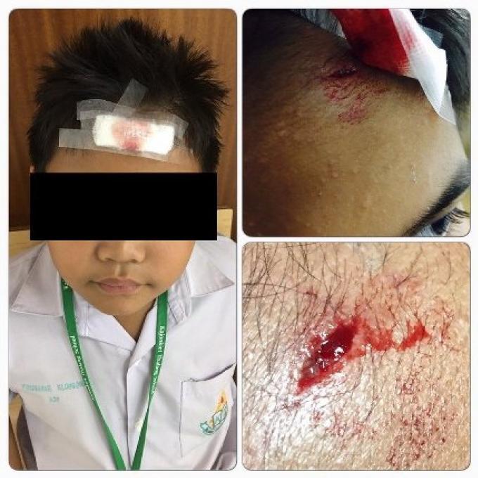 Les parents ont déposé une plainte pour leur fils blessé par l'enseignante de l'école