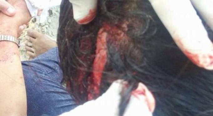 Des thaïes blessées par des chutes de branches sur une plage de Phuket