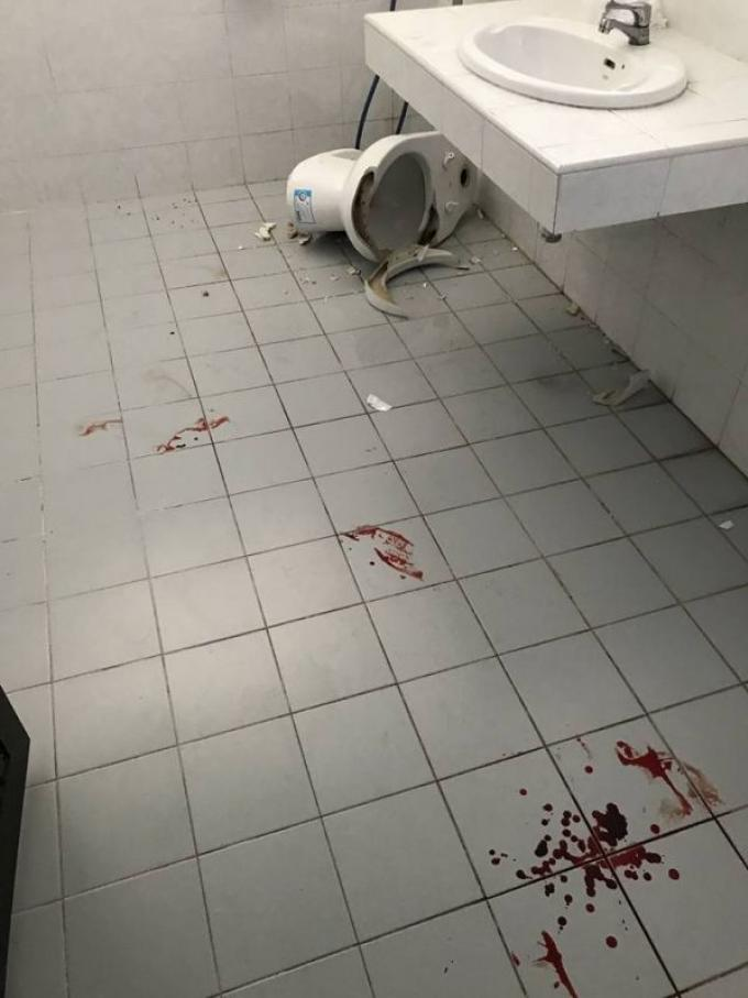 Une étudiante hospitalisée après un incident aux toilettes