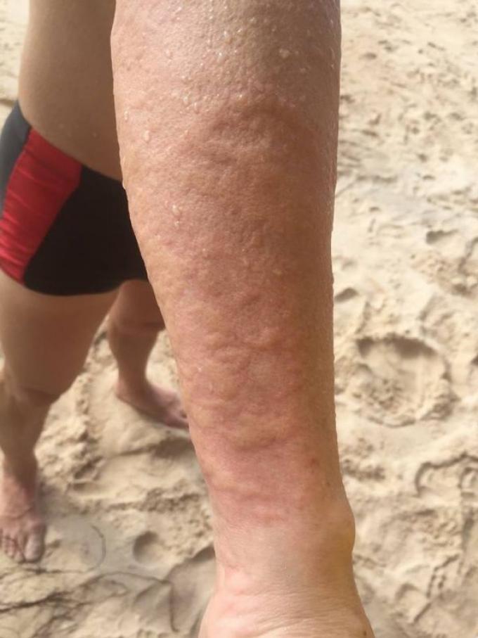 Les sauveteurs lancent une mise en garde contre les méduses 'Rhopilema esculentum'