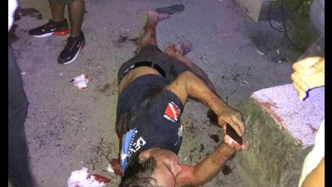 Un australien reçoit 12 coups de couteau en tentant de protéger une femme