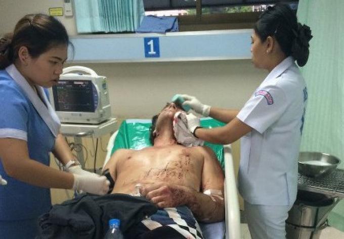 Un tourisme Australien tente de se suicider à Patong dans sa chambre d'hôtelchambre d'hôtel