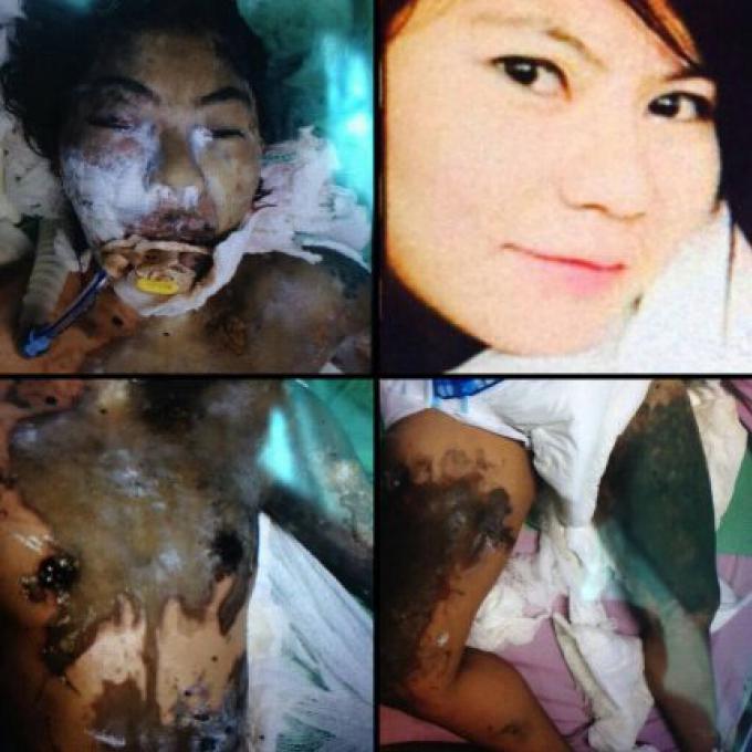 Une femme du Myanmar dans un état critique à l'hôpital après une attaque à l'acide à Phuket At