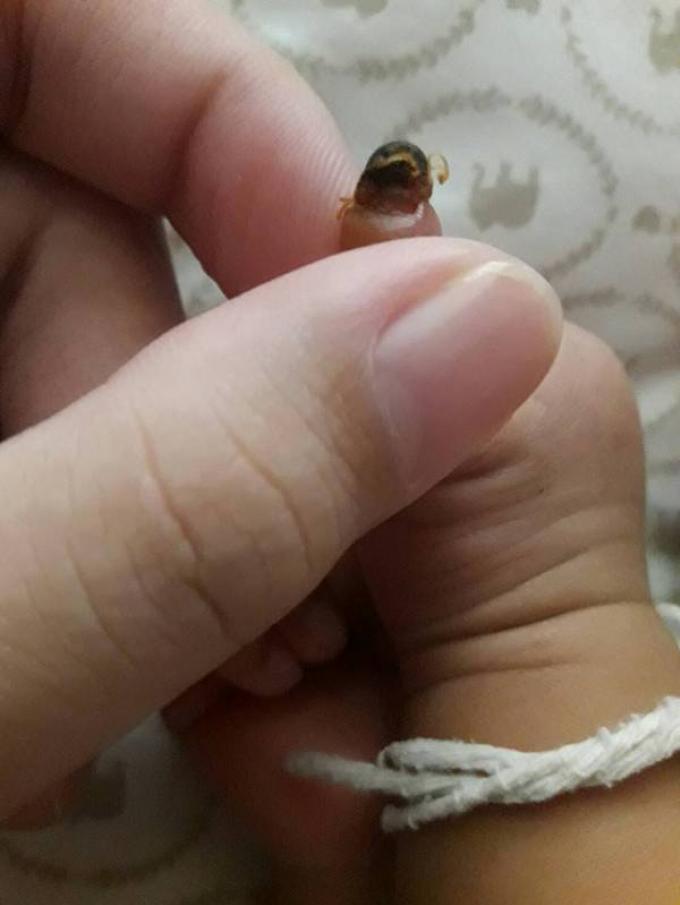 Les parents demandent des réponses pour le doigt coupé et pourrissant de leur nouveau né