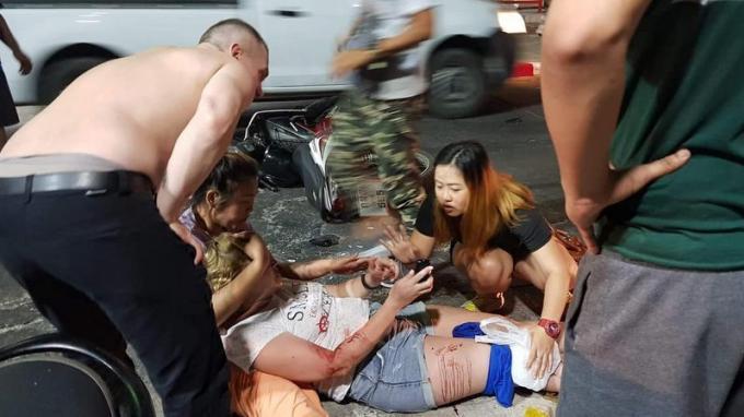 Un touriste brûlé dans un accident de scooter